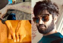 Sudheer Babu caught Right Hand injured