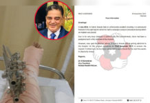 Kamal Haasan to undergo implant removal surgery today