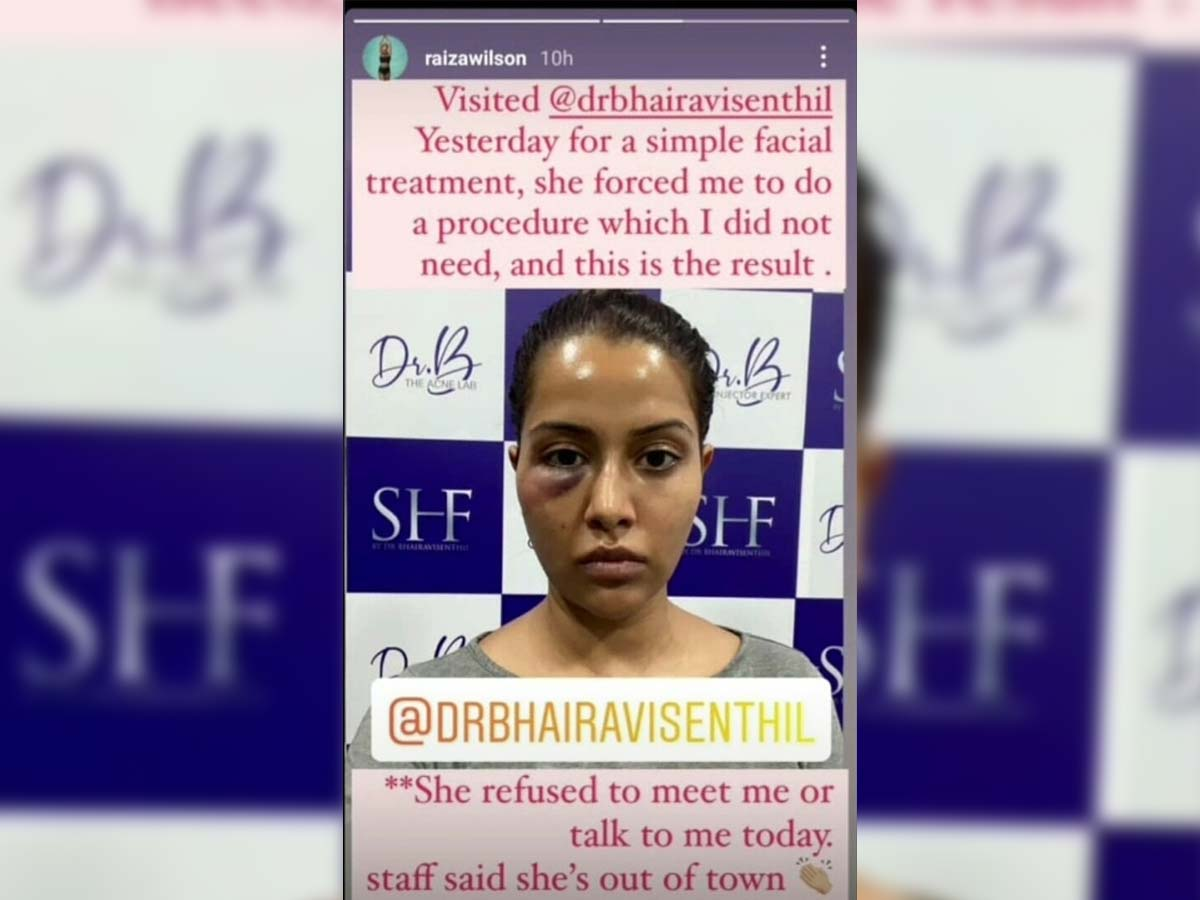 Ex Bigg Boss contestant face treatment goes wrong